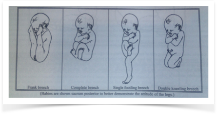 Frye, Anne. Holistic Midwifery Volume II, Labrys Press: 2004. 184.